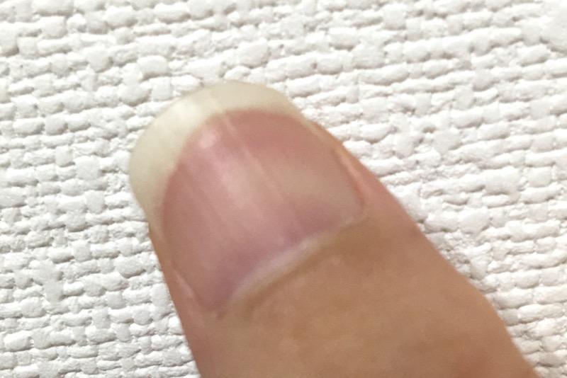 爪 でこぼこ 子供