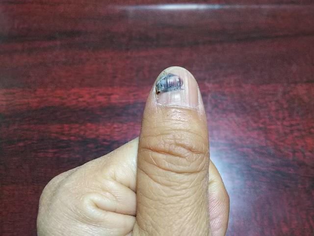 爪 下 血腫 爪下血腫の原因と予防対処!アスリート最多の爪の下の内出血を徹底解...