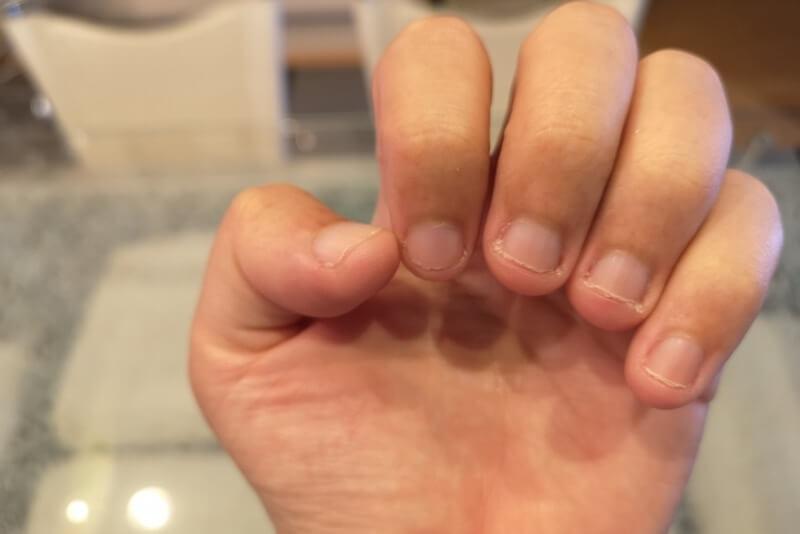 癖 噛む 爪 を