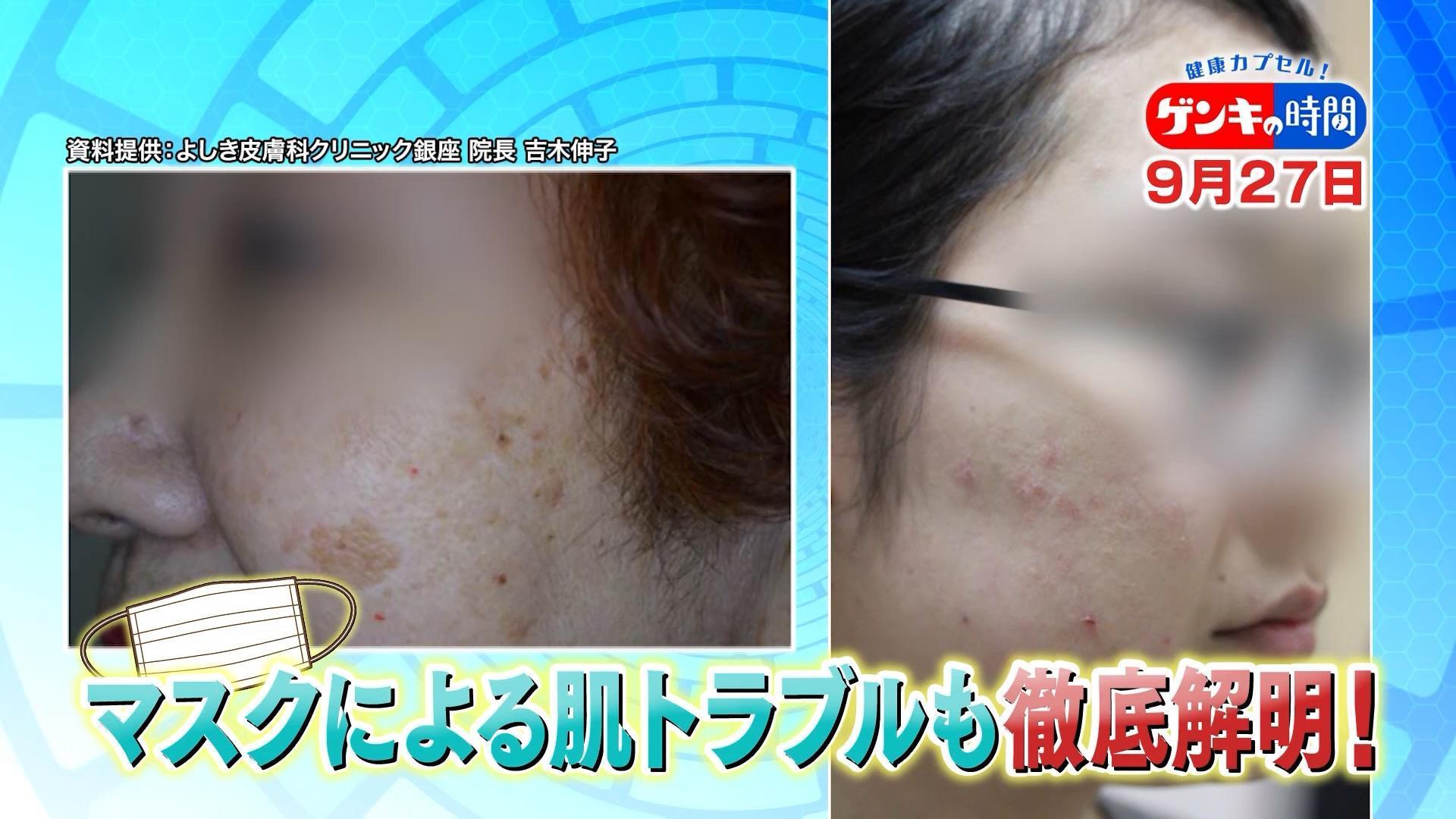 科 よしき クリニック 皮膚